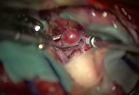 clipping aneurysm