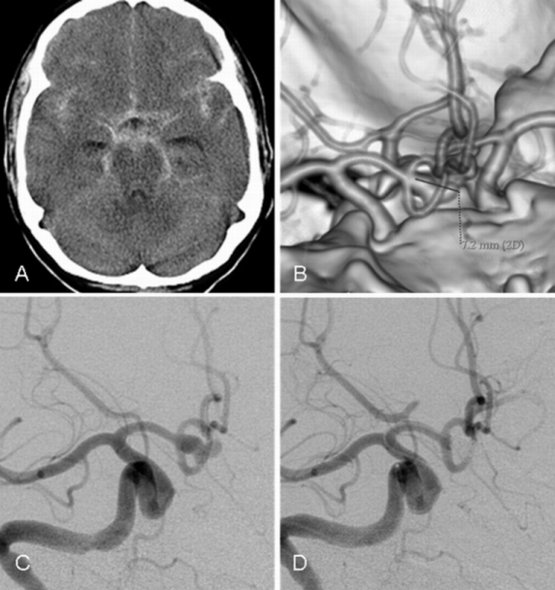 Treatments aneurysm 1