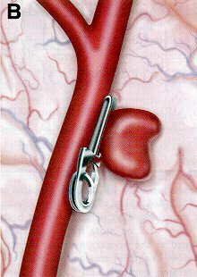 Treatments aneurysm clipping